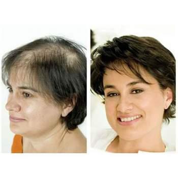 Tratament împotriva căderii părului, pe bază de Baicapil, Calvistop