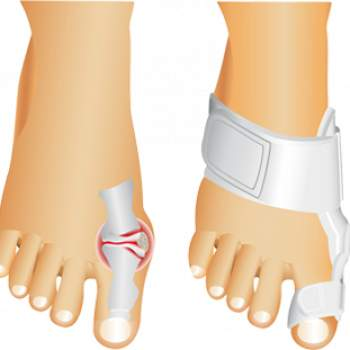 Active Toe Support
