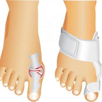 Corector ortopedic pentru deget Active Toe Support